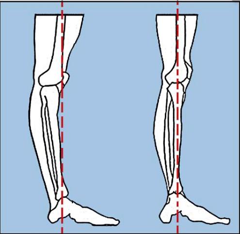 O脚と過伸展