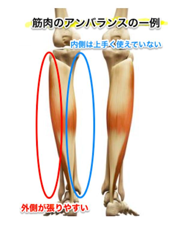 O脚の筋バランス