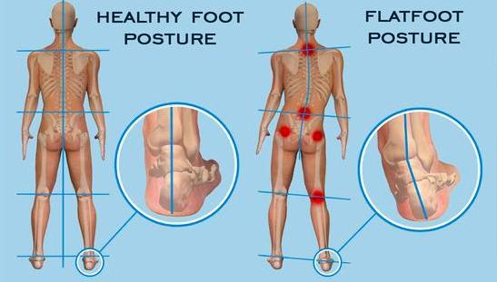扁平足がO脚に