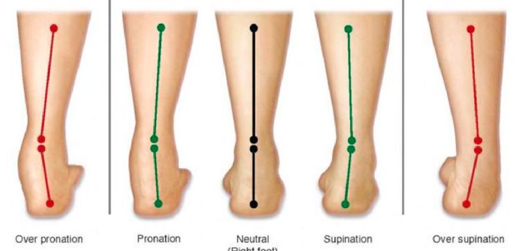 扁平足からO脚に