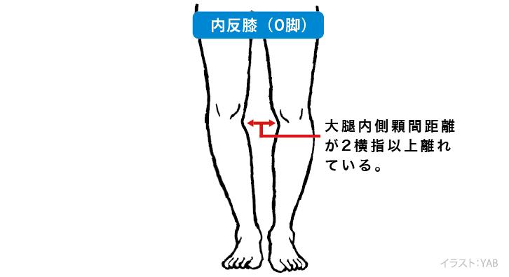 O脚 チェック方法